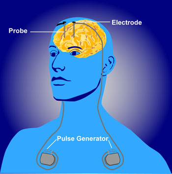 deep brain stimulation Deep brain stimulation (dbs) is an advanced form of brain surgery that was developed to treat parkinson's disease it has been used for those with dystonia, a.