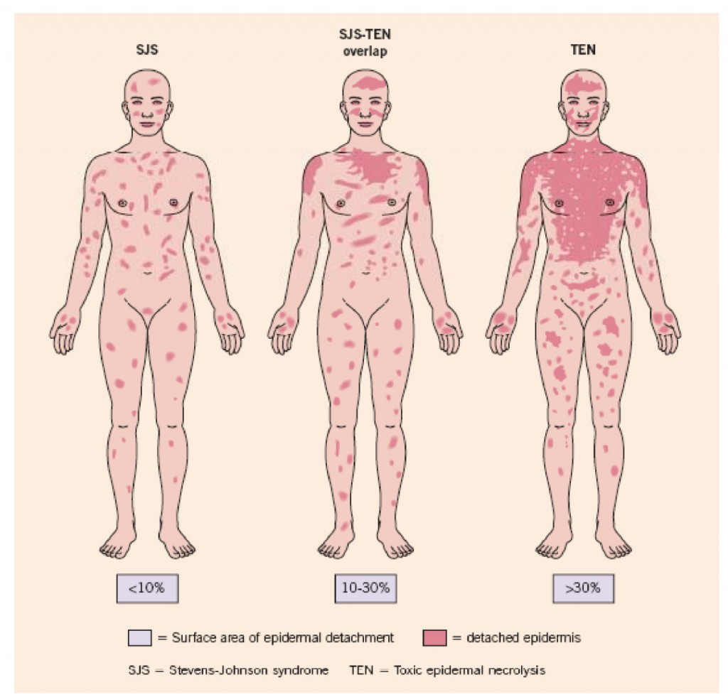 The types of rash that can occur with carbamazepine