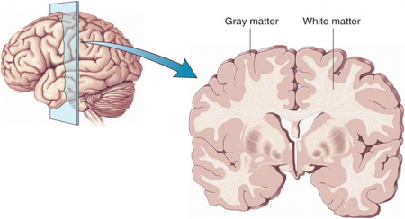 gray matter loss in schizophrenia