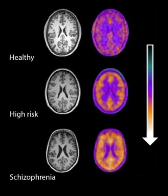 brain inflammation in schizophrenia