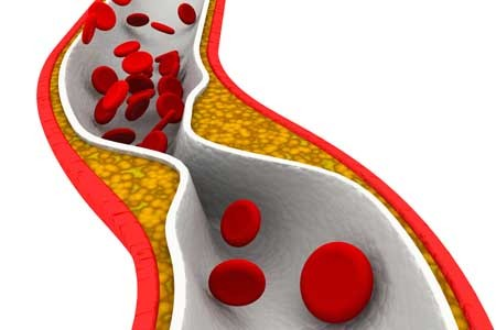 depression may cause early hardening of the arteries