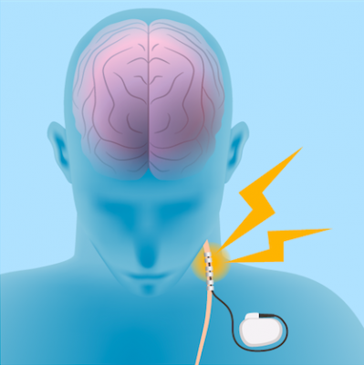 vagal nerve stimulation