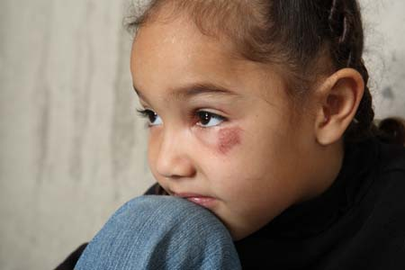 child with bruised face