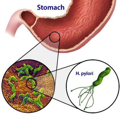 helicobacter pylori in the stomach